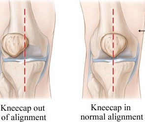 Knee cap pain - patellofemoral pain