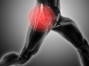 hip OA pain treatment surry hills, sydney