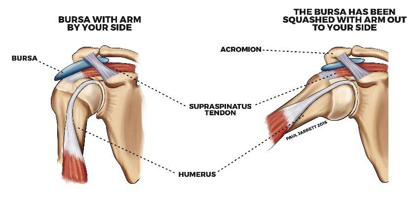 Subacromial-bursitis – PHYSIOCURE