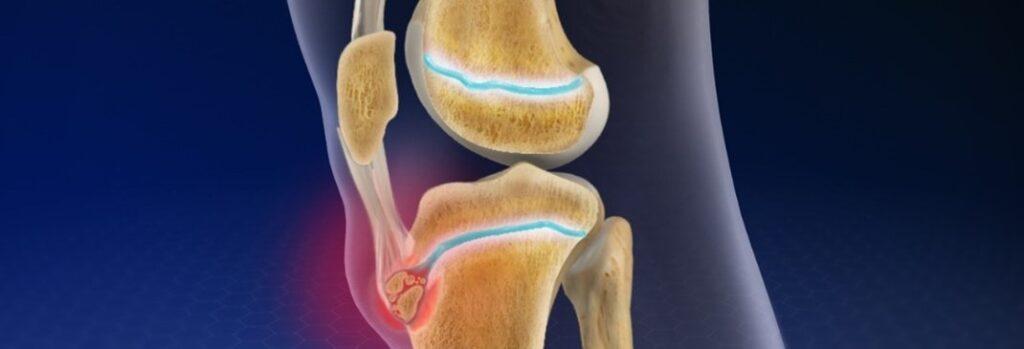 Osgood-Schlatter's Disease and knee pain.