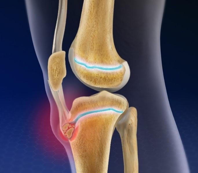 Osgood-Schlatter Disease - Knee Pain